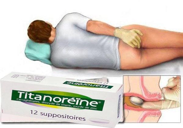 Thuốc đặt trĩ Titanoreine có tốt không?