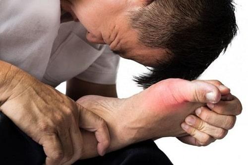 Thuốc hỗ trợ điều trị gout loại nào tốt-1
