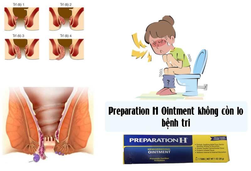 Thuốc preparation h có tốt không? mua thuốc preparation h ở đâu