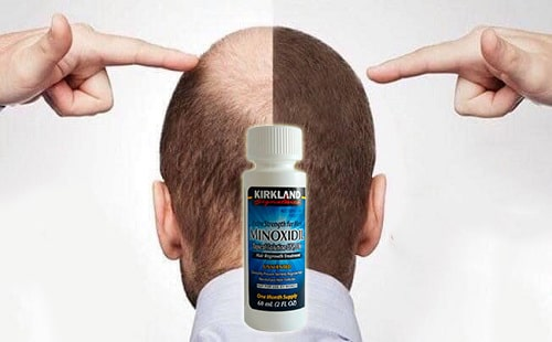 Review thuốc mọc tóc Minoxidil 5% Kirkland của Mỹ-4